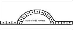 ドーム構造体の模式図