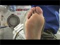 古川宇宙飛行士による足裏の観察